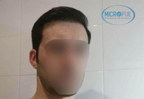 innesto dei capelli in Turchia 6