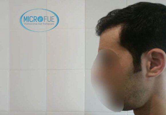 innesto dei capelli in Turchia 7