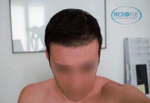 innesto dei capelli 8