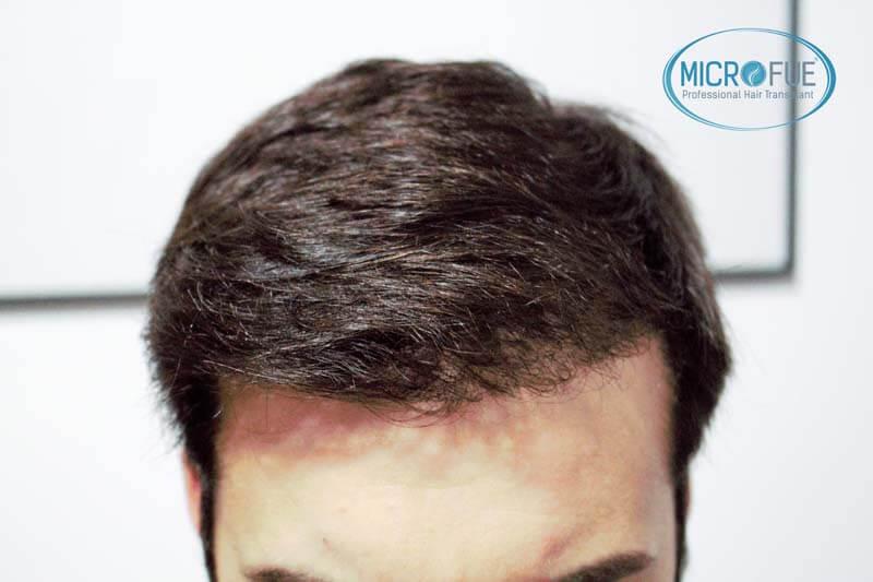 innesto dei capelli 9