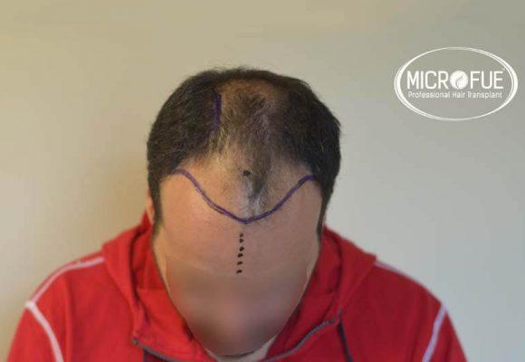 trapianto capelli microfue 10