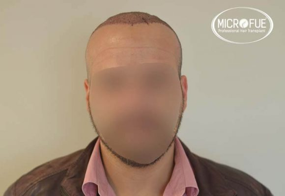 trapianto capelli microfue 12