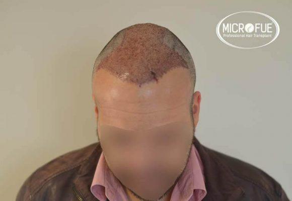 trapianto capelli microfue 13