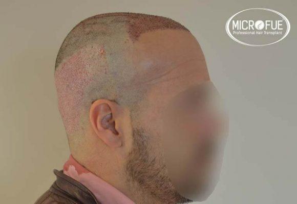 trapianto capelli microfue 14