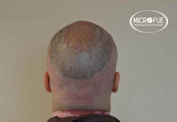 Immagini prima e dopo un trapianto di capelli in Turchia Microfue