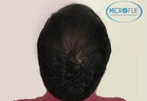 trapianto capelli microfue 6