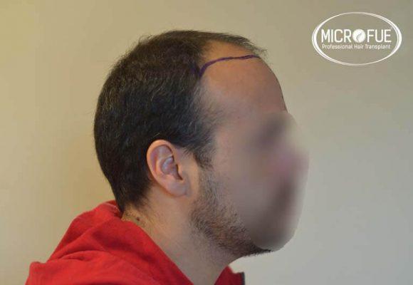 trapianto capelli microfue 7