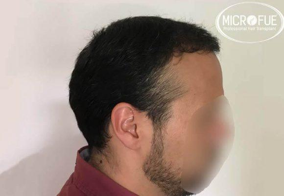 trapianto capelli microfue 8