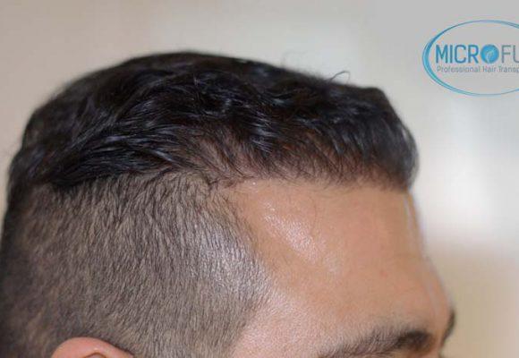 recuperare i capelli trapianto di capelli microfue 10