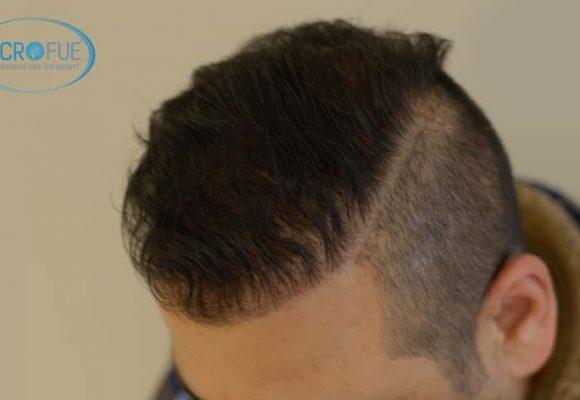 recuperare i capelli trapianto di capelli microfue 11