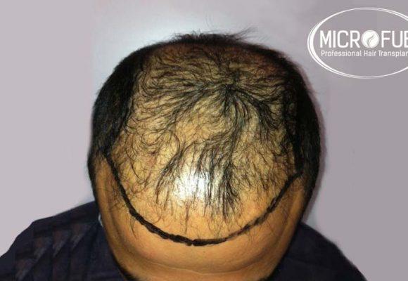 recuperare i capelli trapianto di capelli microfue 3