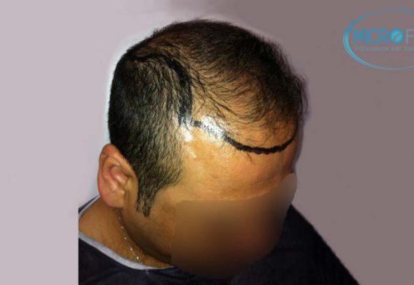 recuperare i capelli trapianto di capelli microfue 5