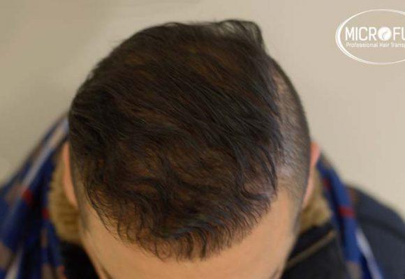 recuperare i capelli trapianto di capelli microfue 8