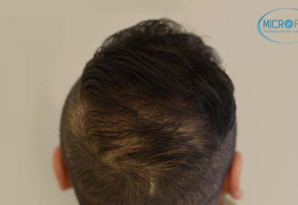 recuperare i capelli trapianto di capelli microfue 9