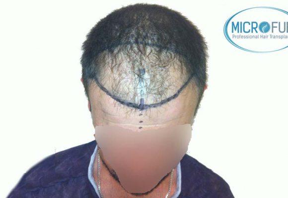 recuperare i capelli trapianto di capelli microfue 003
