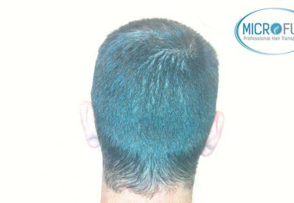 recuperare i capelli trapianto di capelli microfue 004