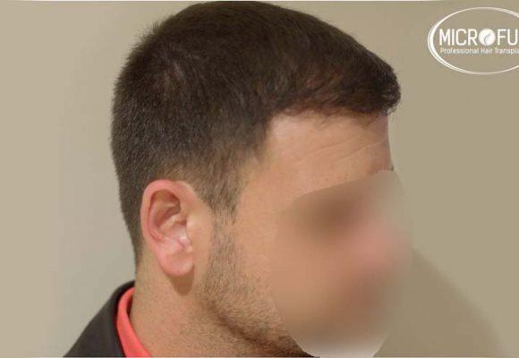 risultati del trapianto di capelli in Turchia con Microfue