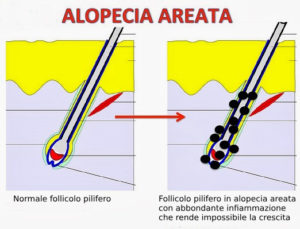 Alopecia Areata_follicolo