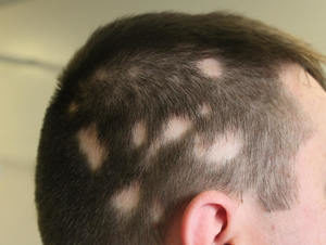 trattamento per alopecia areata