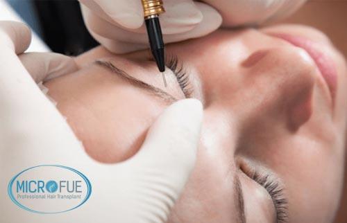 Micropigmentazione capelli: una nuova tecnica per il trattamento dei capelli