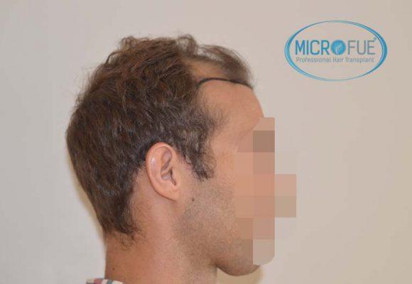 trapianto di capelli in Turchia Microfue -02