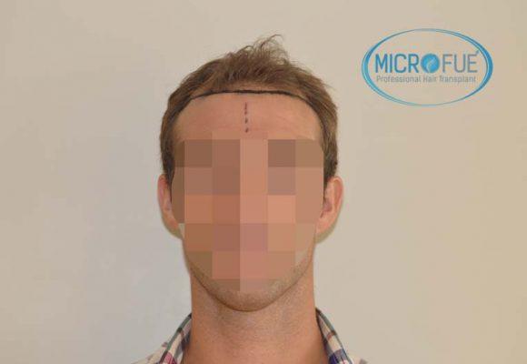 trapianto di capelli in Turchia Microfue -00
