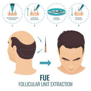 FUE Follicular unit extraction Estrazione follicolare