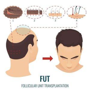 FUT follicular unit transplantation trapianto di unità follicolari