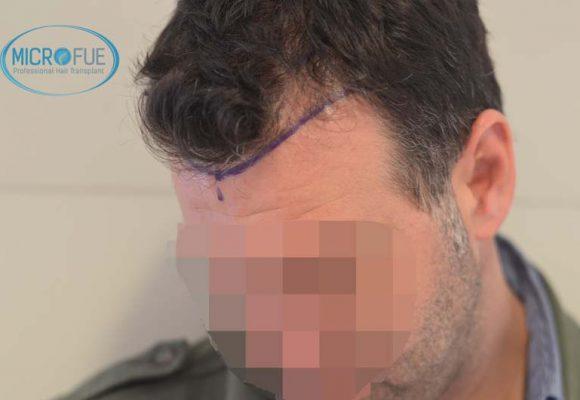 microtrapianto di capelli risultati in Turchia prima e dopo