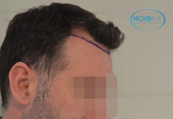 microtrapianto di capillari risultati in Turchia prima e dopo