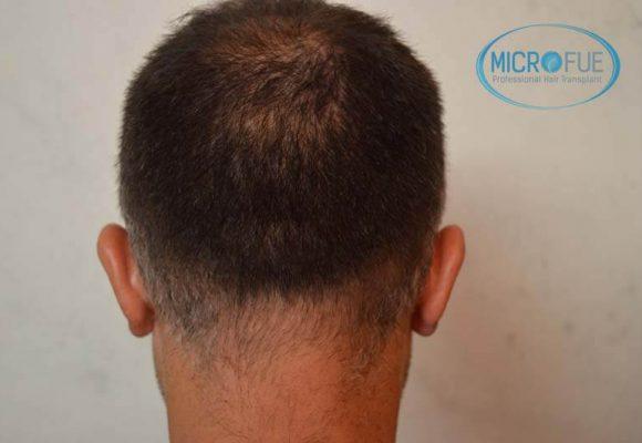 risultati del trapianto di capelli in Turchia 12
