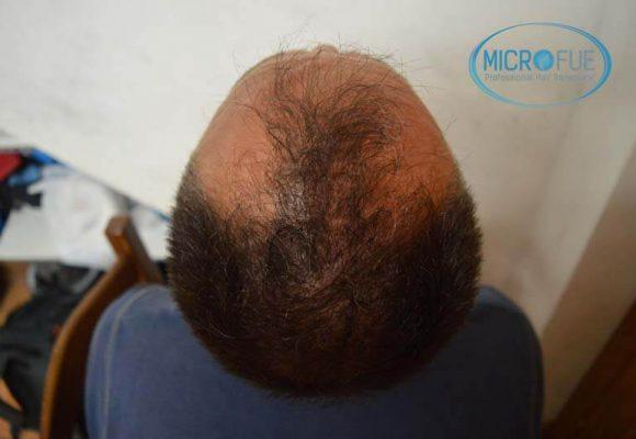 risultati del trapianto di capelli in Turchia 14