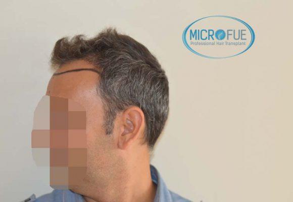 trapianto_di_capelli_Turchia_Microfue_foto_risultato_5
