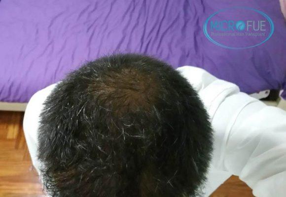 risultati del trapianto di capelli in Turchia 06