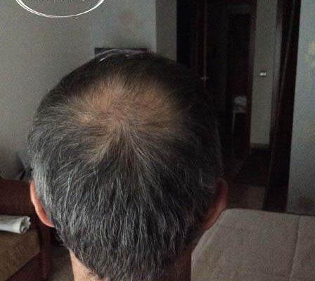 trapianto di capelli risultati in Turchia prima e dopo