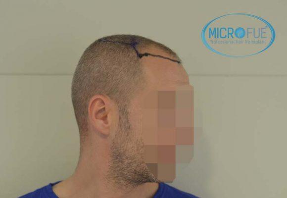 trapianto_capelli_Turchia_Microfue_73