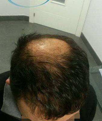 risultati del trapianto di capelli in Turchia prima dopo