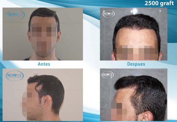 i trapianti di capelli risultano in Turchia con la tecnica FUE