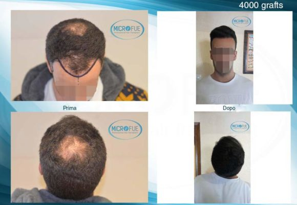 trapianto capelli in Turchia con Microfue foto di prima e dopo