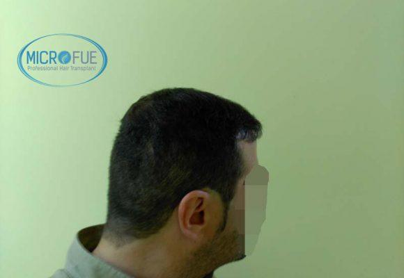 trapianto__di_capelli_Turchia_Microfue_resultati_8