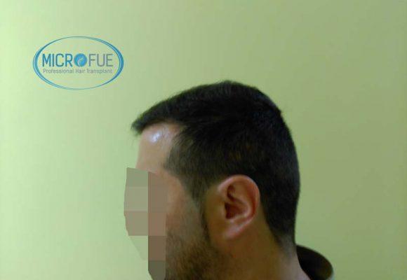 trapianto__di_capelli_Turchia_Microfue_resultati_9