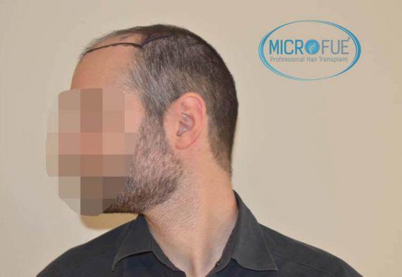 trapianto de capelli Turchia Microfue 53