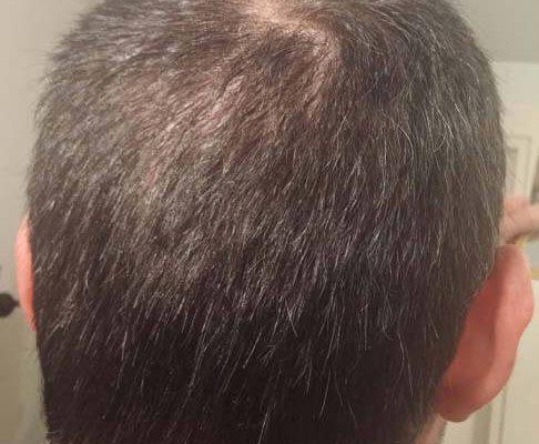 trapianto de capelli Turchia Microfue 57