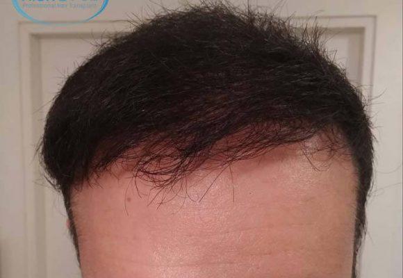 trapianto de capelli Turchia Microfue 56