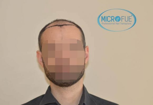 trapianto de capelli Turchia Microfue 50