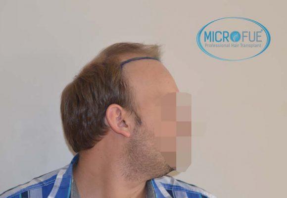 l'impianto dei capelli risulta in Turchia prima e dopo