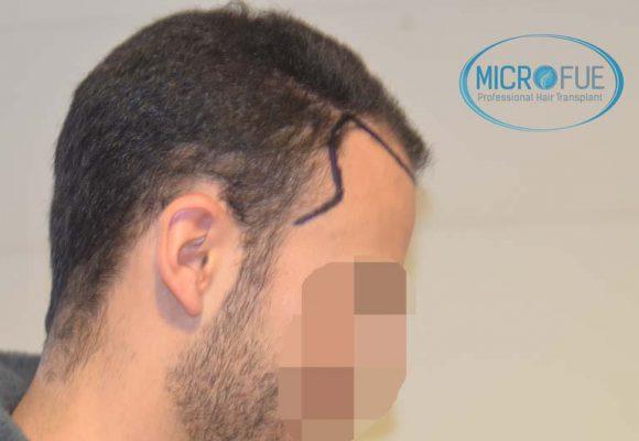 trapianto_di_capelli_Turchia_Microfue_05