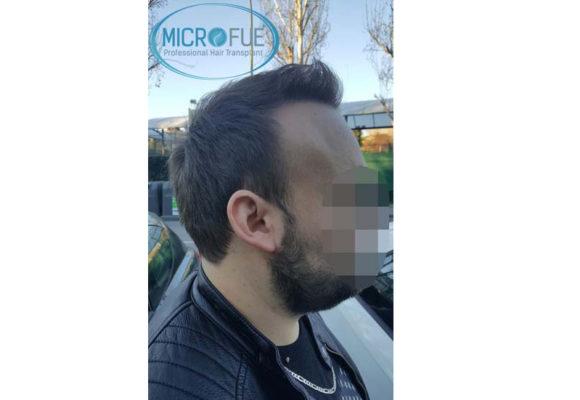 trapianto_capelli_Turchia_Microfue_28