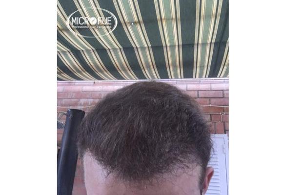 trapianto di capelli in Turchia Microfue -06