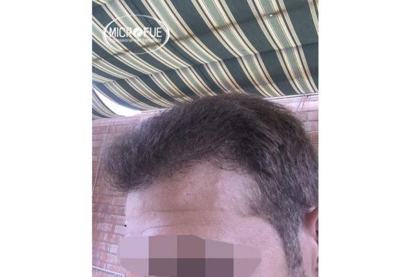 trapianto di capelli in Turchia Microfue -08